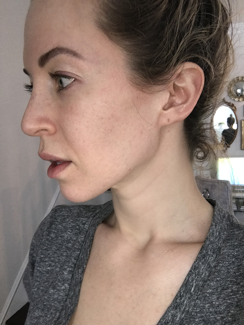 no acne but still marks on a girls skins
